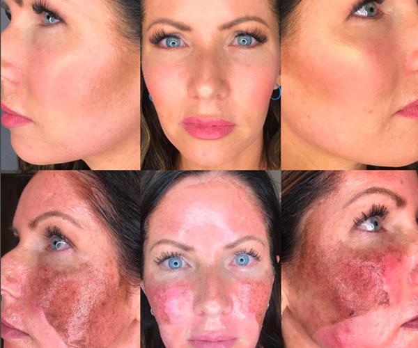 Chemical Facial Peel